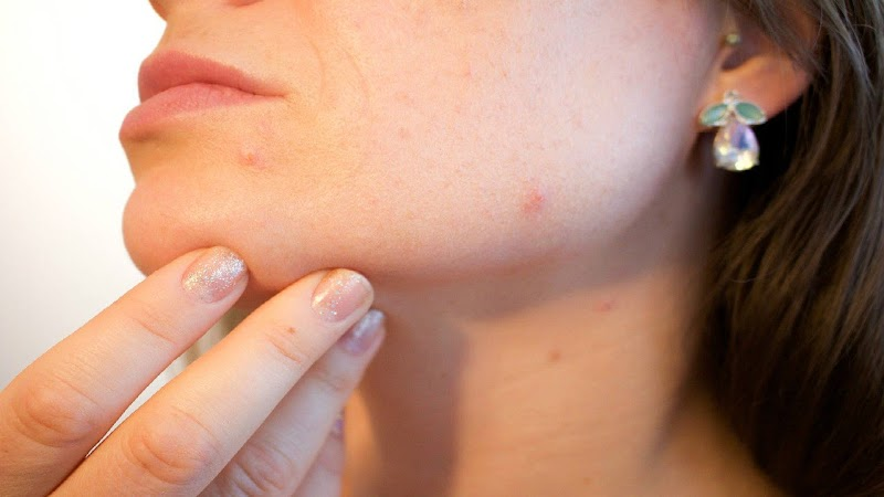 Four easy-peasy home remedies for acne