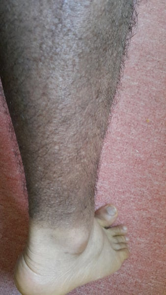 My legs have discoloration. What are my options? (Photo ...