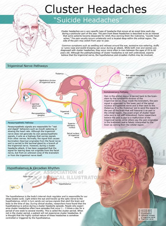 "Infographic : Cluster Headaches "" Suicide Headaches """