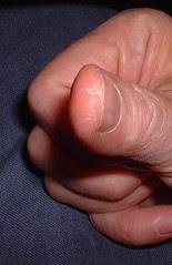 warped finger