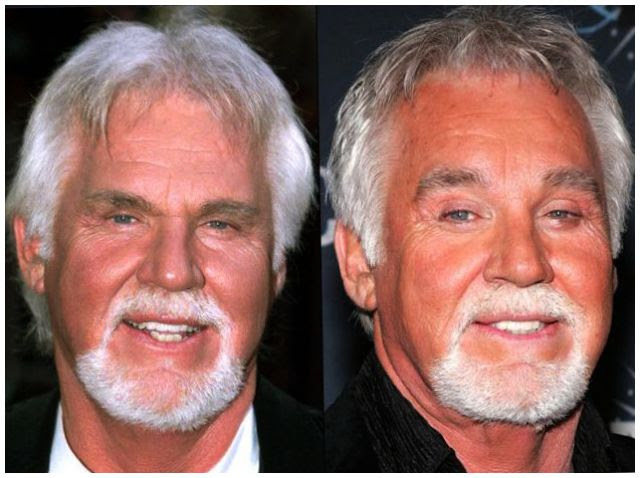 Kenny Rogers Face Lift Before And After Photos Celebrity