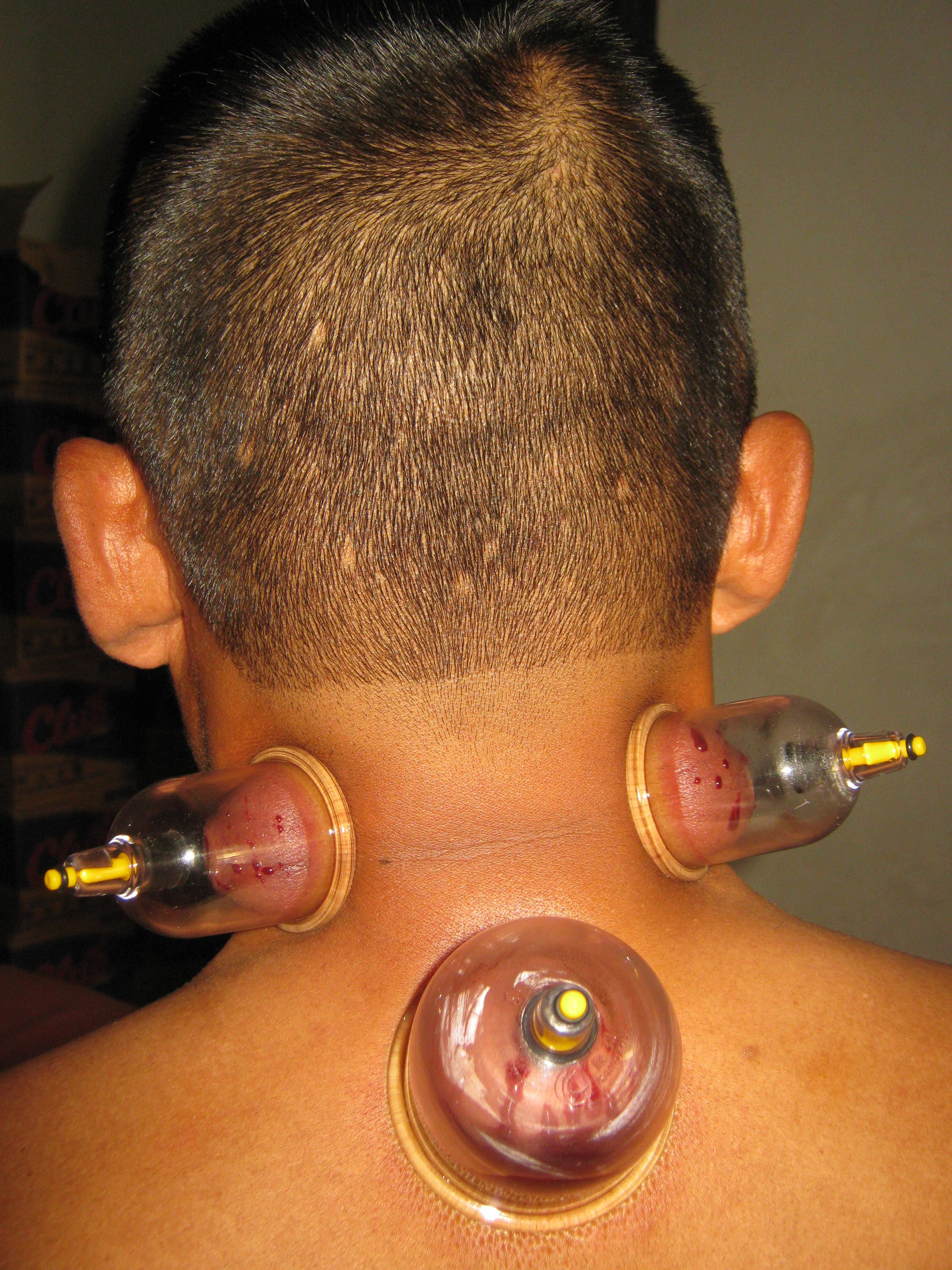 Terapi-Penyembuhan-untuk-Sakit-Kepala-Vertigo