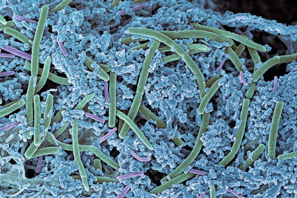Bacteria link to bowel cancer
