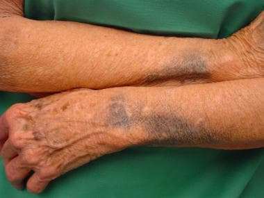 Drug-Induced Pigmentation Clinical Presentation: History ...