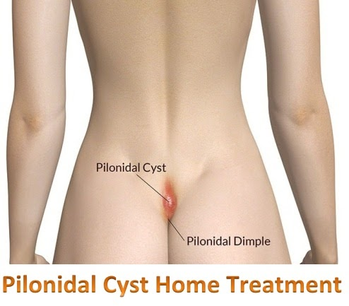 Home Remedies For Pilonidal Cyst Active Home Remedies