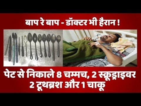 Doctors is shocked ||  knife, toothbrushes, spoons, screwdrivers removed...