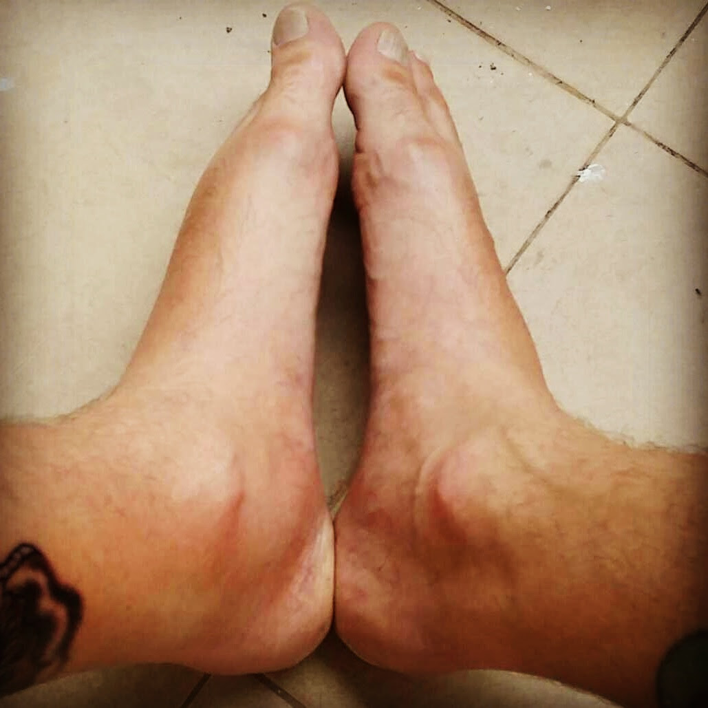 Feet And Ankle Swelling After Leg Tattoo Midlifemate