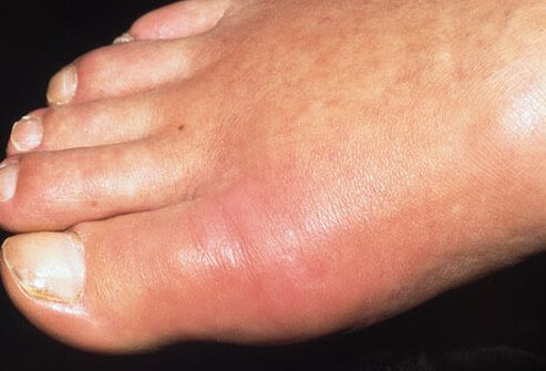 A photo of a red and swollen foot caused by gout.