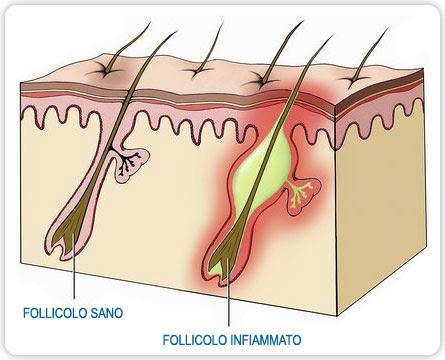 Cuoio capelluto sensibile sintomi cause e rimedi Tanta Salute - infiammazione cuoio capelluto rimedi