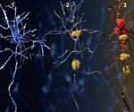 Deciphering the structure of amyloid in Alzheimer's disease with NMR
