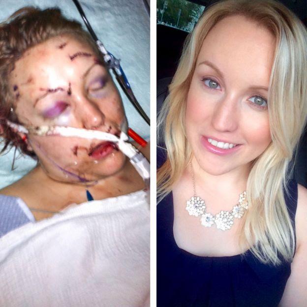 Melissa no hospital e atualmente