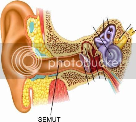 Cara ngeluarin semut dari dalam telinga