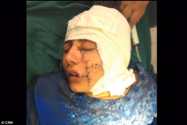 Gul Meena's brother thought he had killed her but surgeons were able to save her life