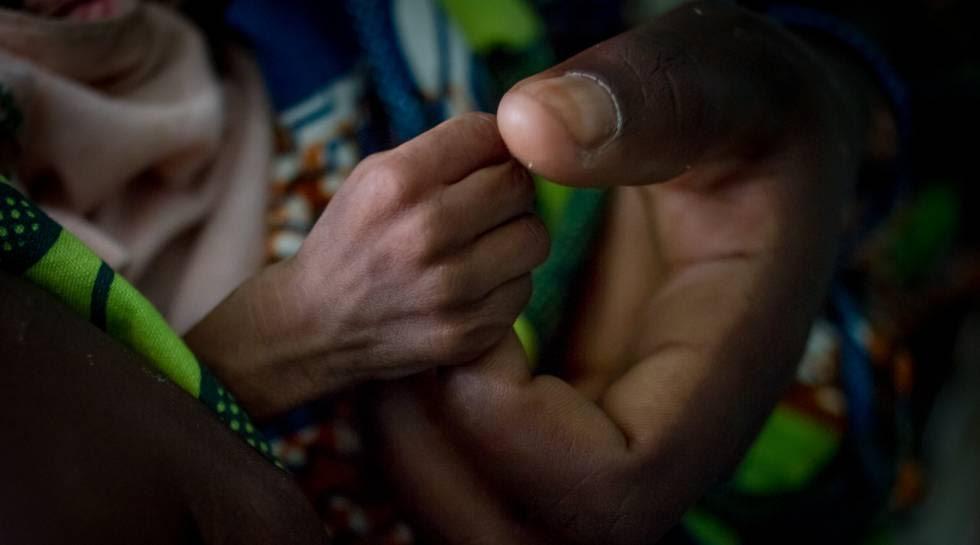 Hadida, de cinco meses y con malnutrición aguda severa agarra el dedo de su madre, Fátima, en el hospital de Diffa, en Níger.