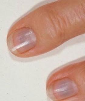 ongles-bleuatres
