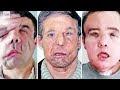Pencangkokan wajah kedua manusia adalah yang pertama di dunia
