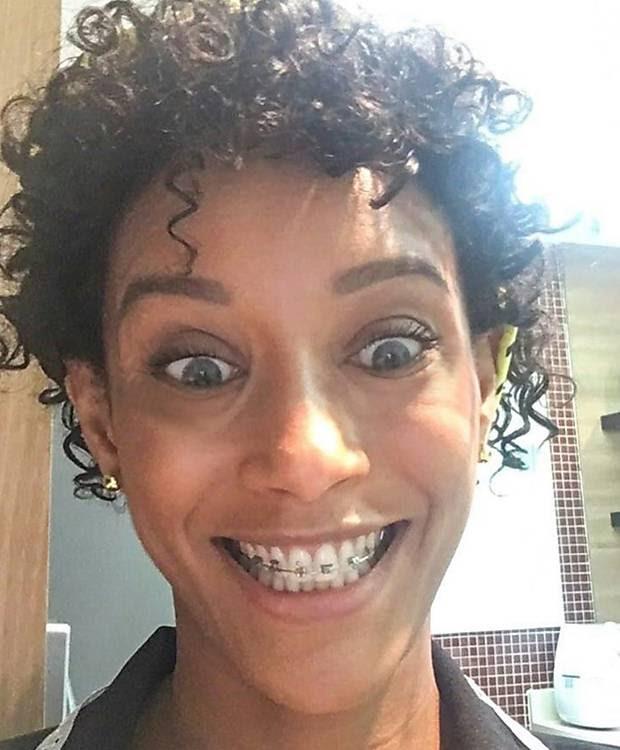 Resultado de imagem para Taís Araújo surpreende seguidores e aparece com olhos azuis e aparelho nos dentes em foto