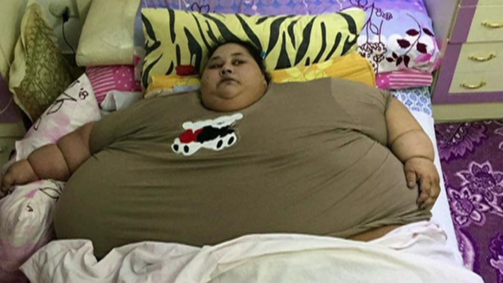 Cortesia Muffazzal Lakdawala (Foto: A egípcia Eman Abd El Aty era a mulher mais pesada do mundo)