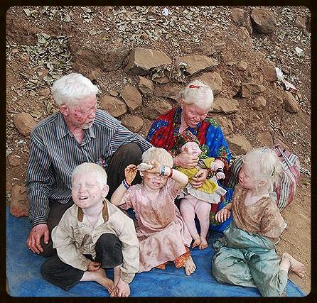 Albinism...Haji Malang Beggar Family by firoze shakir photographerno1