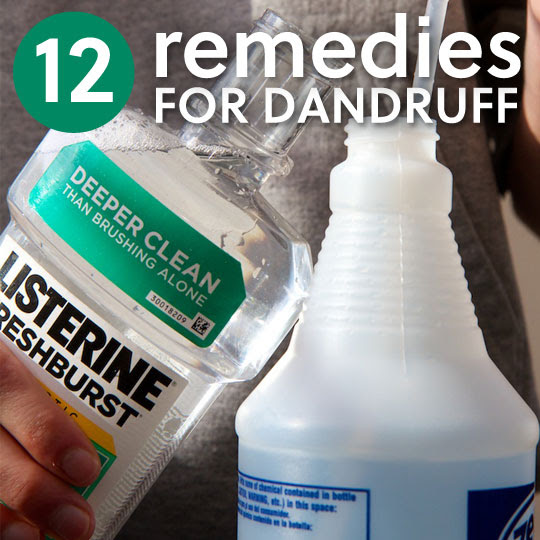 12 Dandruff Remedies- to get rid of the flakes.