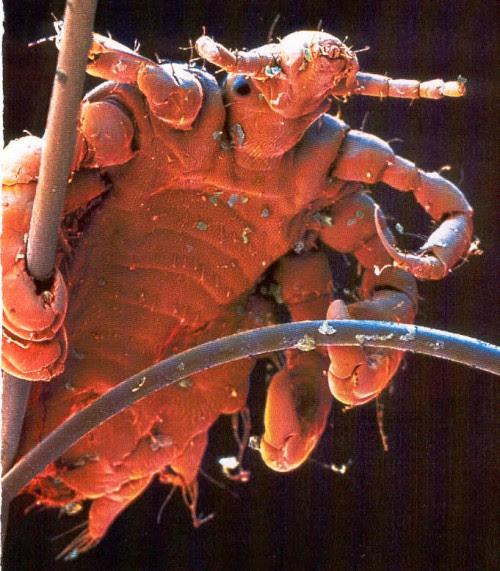 Foto al microscopio de este insecto agarrado a un par de pelos