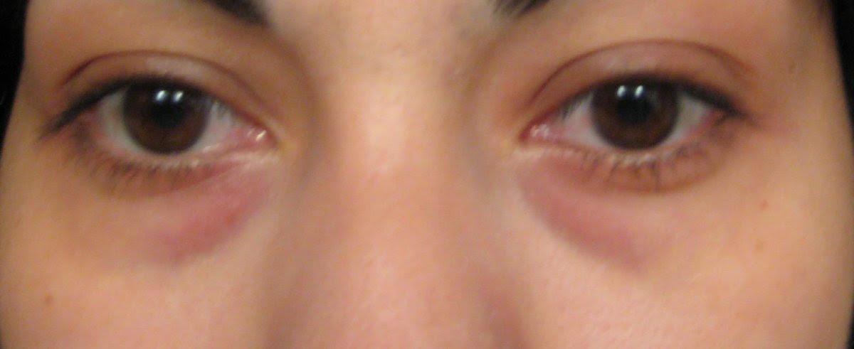 16 Easy & Quick Ways to Get Rid Of Dark Circles Under Eyes ...