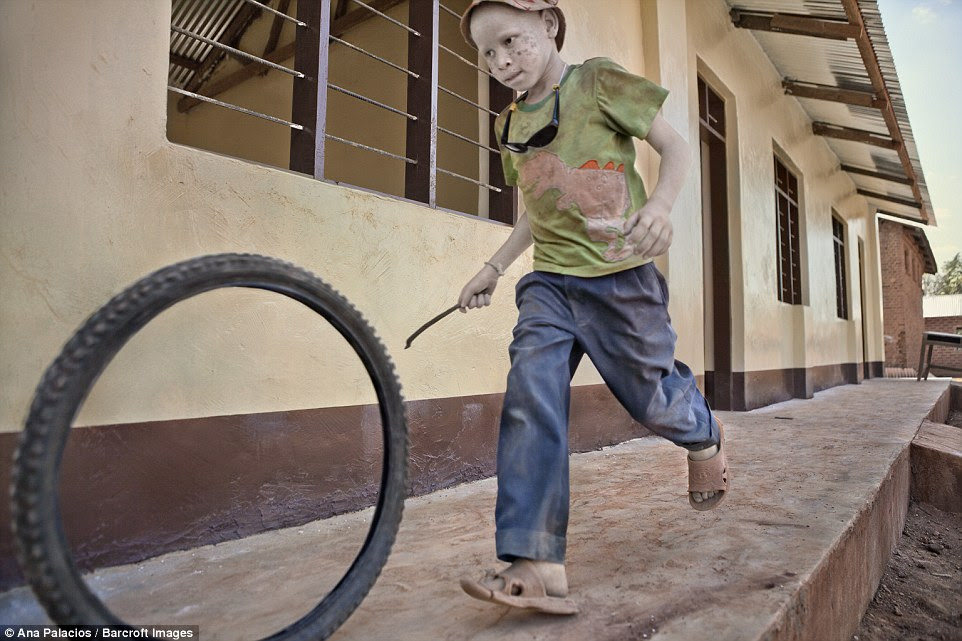 A young boy with albinism plays with a hoop and stick in a place where children must make the most of the toys available