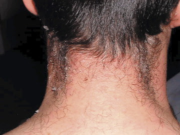 A young rash on old shoulders—scarlet fever in an adult ...