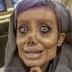 La verdad tras la joven iraní operada 50 veces para lucir como Angelina Jolie