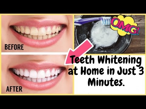 Teeth Whitening At Home in Just 3 Minutes | How to Whiten teeth Naturally