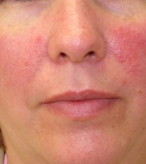 Image result for red skin irritation on face