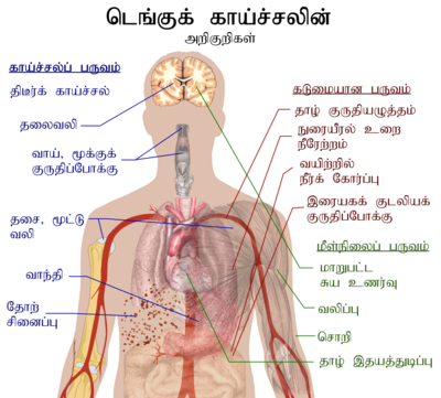 Outline of a human torso with arrows indicating the organs affected in the various stages of dengue fever