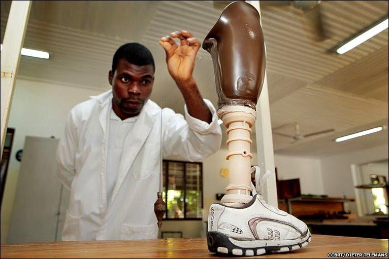 Ghanaian prosthetist Koho Moses Kofi © CCBRT/DIETER TELEMANS