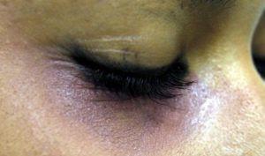 Ceilândia é a cidade com mais registros de violência doméstica no DF em 2014