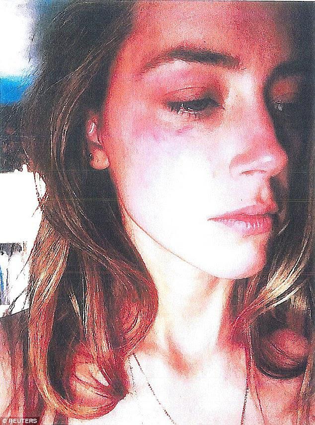 Fotografias da hematomas no rosto de Heard, que ela afirma foi infligida por Depp, foram apresentados ao Los Angeles Superior Court