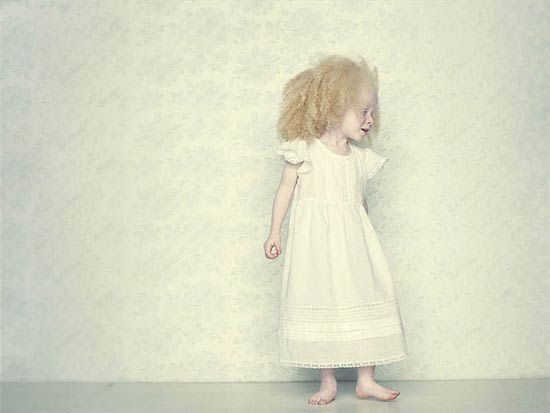 Albino (9)