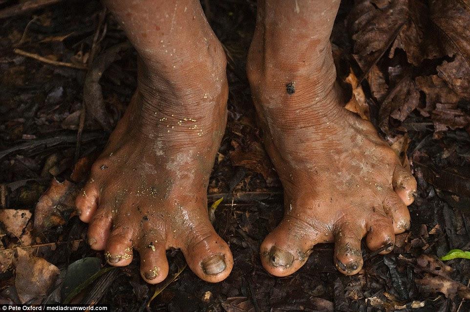 Chame o pedicuro: Os Huaorani gastam tanto tempo escalando acima das árvores que seus pés evoluíram e a maioria tem pés muito lisos.  Devido ao pequeno pool genético muitos também têm seis dedos em cada pé