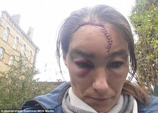 Yorkshire Woman Left With Head Wound In Racist Attack