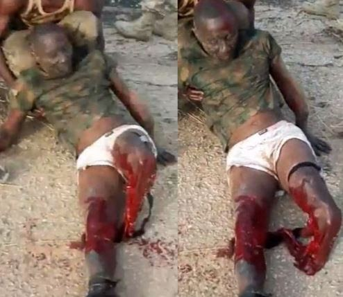 Graphic video of a Nigerian soldier with his legs destroyed in battle with Boko Haram Shared by Reno Omokri.