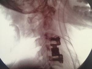 Jovem quebrou três vértebras (Foto: Arquivo pessoal/ Emil Shayeb)