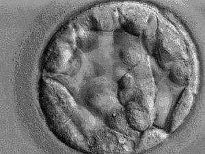 English: Blastocyst on day 5 after fertilizati...