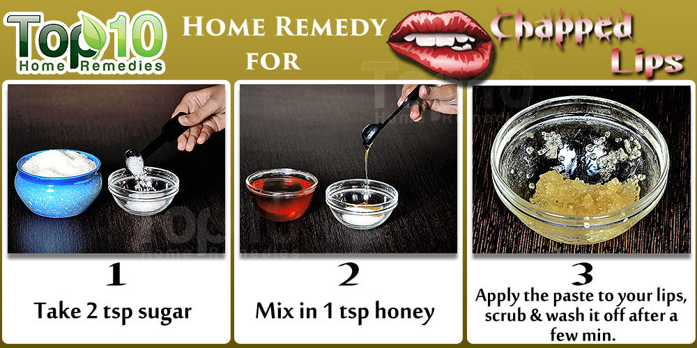Image result for How to Prevent Dry Chapped Lips