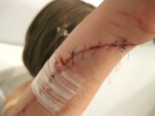 Storm Door Stitches