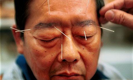 写真:鍼治療