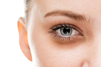 Dark Circles | MD Laser and Cosmetics