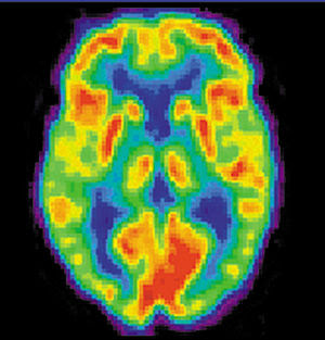 Positron emission tomography image of a human ...