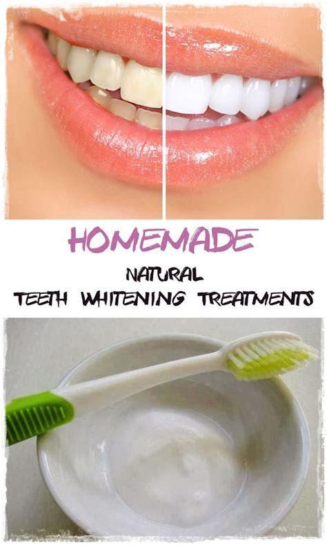 17 Best ideas about Banana Teeth Whitening on Pinterest