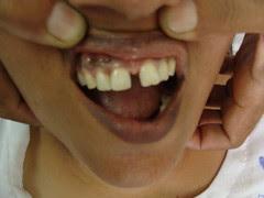 बिना किसी बीमारी के भी दांतों में गैप हो सकता है ---डायास्टिमा Diastema