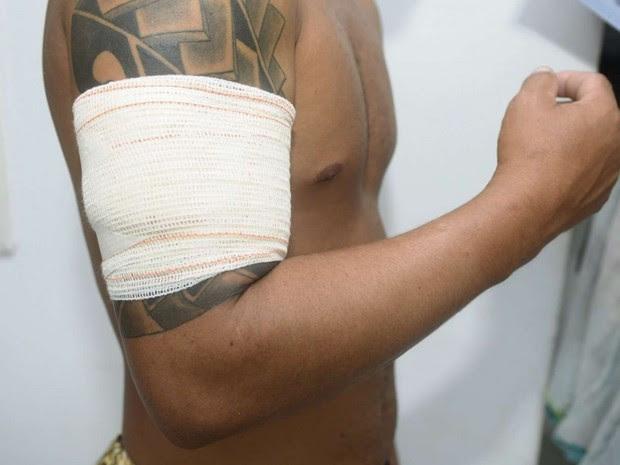 Passageiro ficou baleado em assalto no Transcol, no Espírito Santo (Foto: Ricardo Vervloet/ A Gazeta)