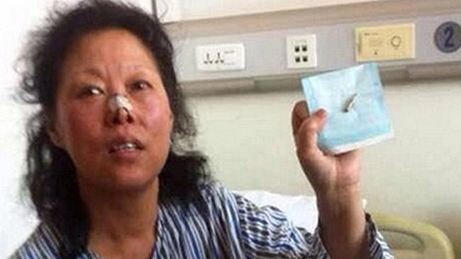 Amazing find... Mrs Zhao shows the bullet extracted from her head.